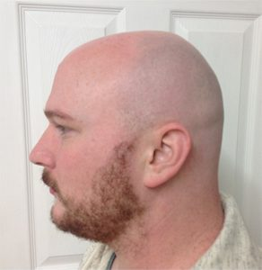 Scalp Micropigmentation before